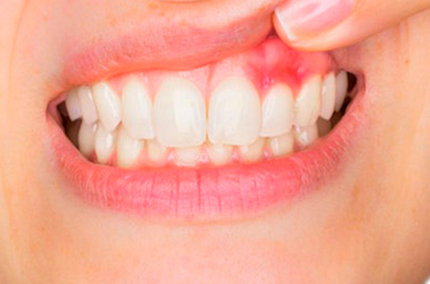 dentitox pro customer reviews